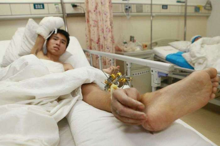 Китайцу спасли отрезанную руку, пришив ее к ноге (3 фото)