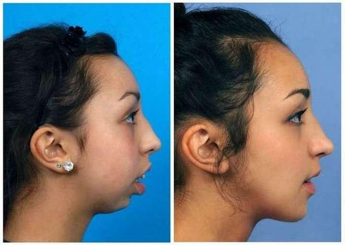 Хирургия меняет внешность и судьбу