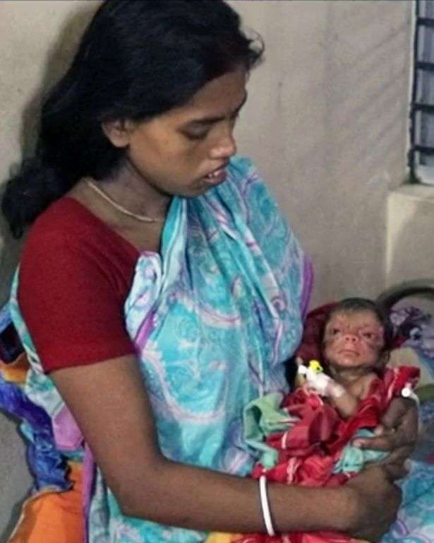В Бангладеш появился на свет младенец, выглядящий как 80-летний старик