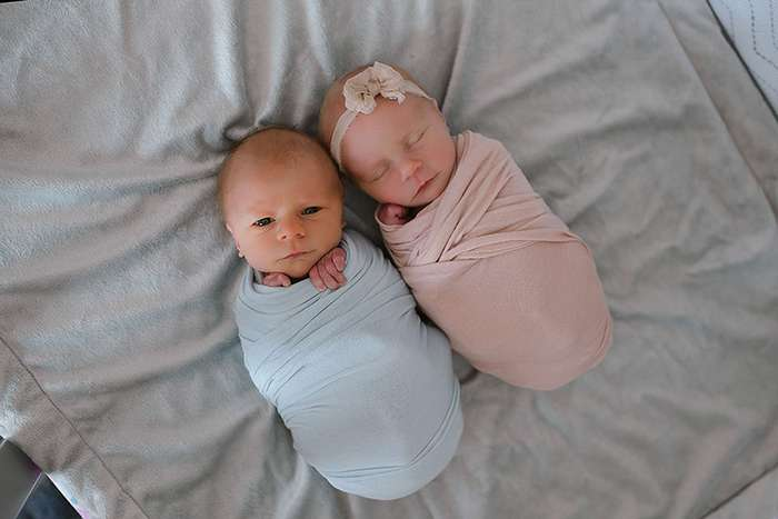 Фотосессия новорожденных близнецов, один из которых скоро должен умереть