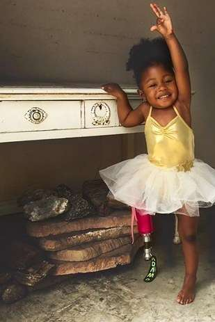 Аврора Каиро — очаровательная 2-летняя малышка с протезом ноги