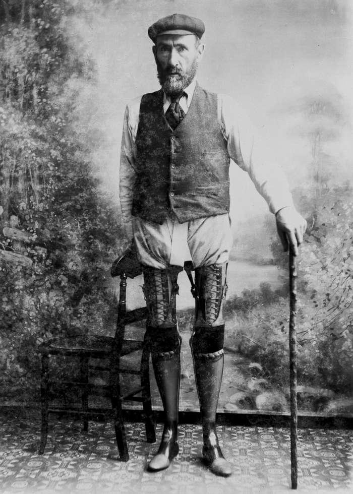 Гений протезов Джеймс Джиллингем – английский сапожник, который ошеломил медицинский мир