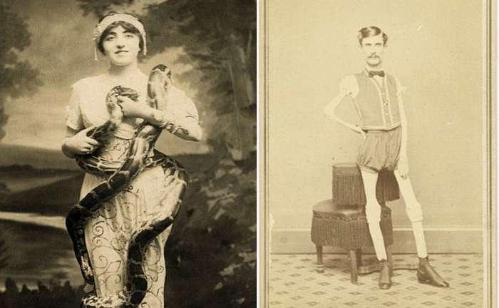 Суровый XIX век: коллекция архивных фотографий людей с деформациями