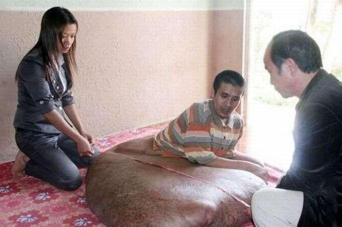 Опухоль в 80 килограмм (7 фото)