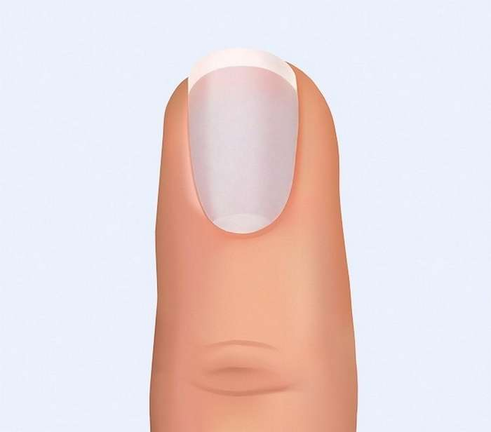 Что могут рассказать ваши ногти?