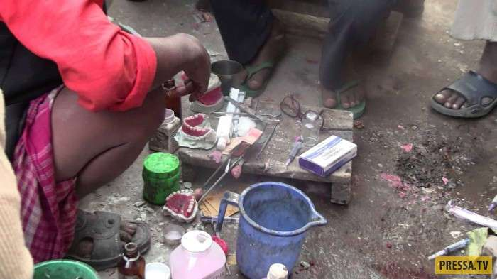 Уличные стоматологи в Пакистане (8 фото)