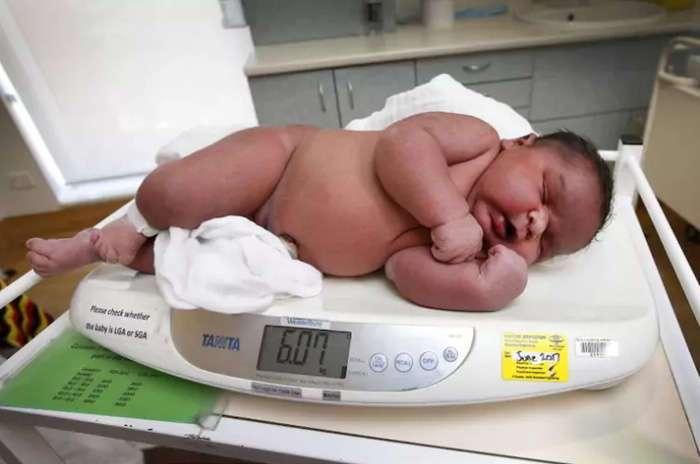 В Австралии женщина родила ребенка в два раза крупнее обычных малышей