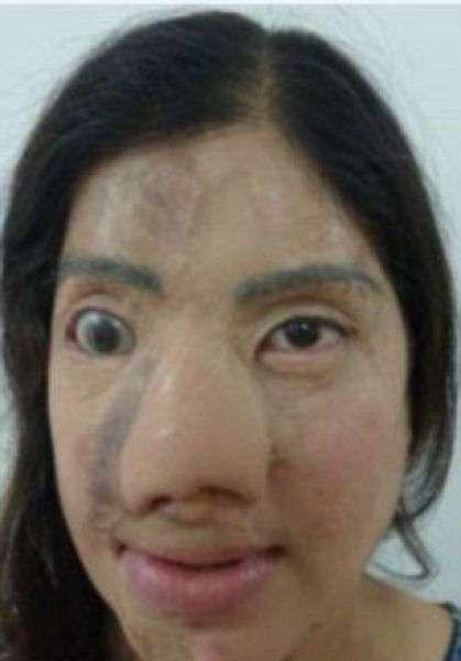 Подруга из зависти плеснул девушке в лицо кислотой