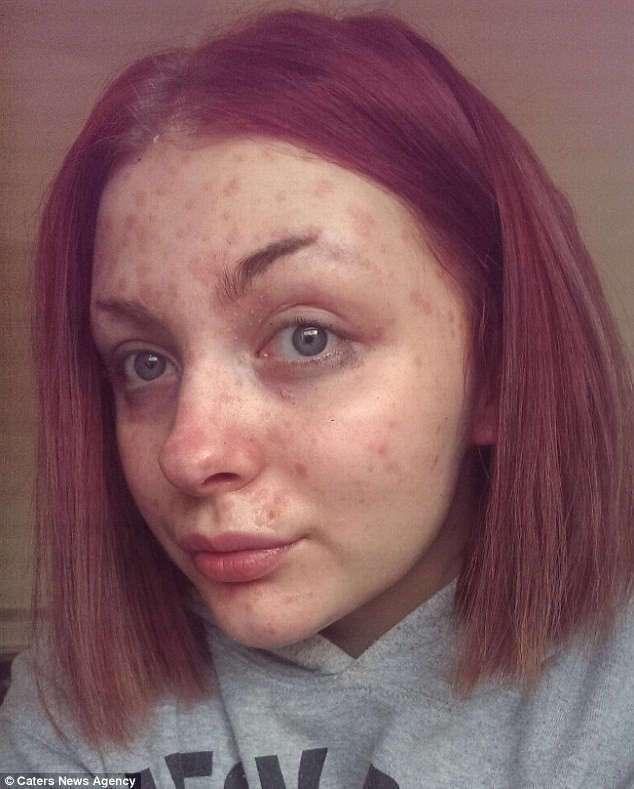 Чудеса макияжа: девушка с -кожей-чешуей- вдохновляет больных псориазом волшебными преображениями