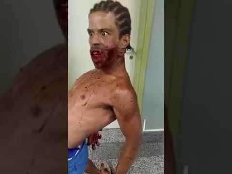 Одержимый пациент привёл в ужас медперсонал госпиталя (видео)