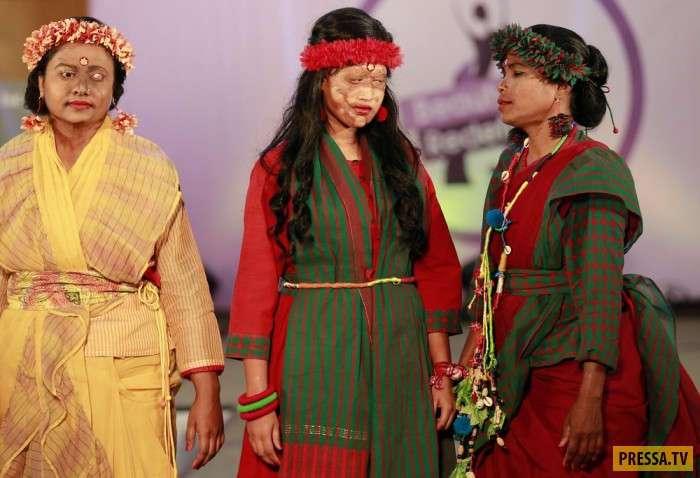 Женщины, пострадавшие от кислотных атак провели показ мод (15 фото)