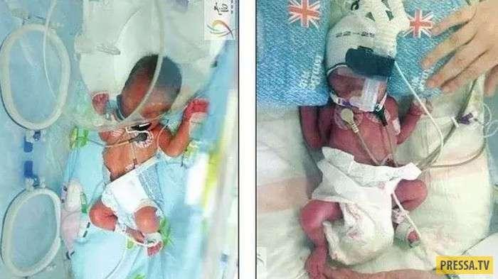 Молодая женщина родила близнецов, спустя 6 дней после рождения первенца (фото)
