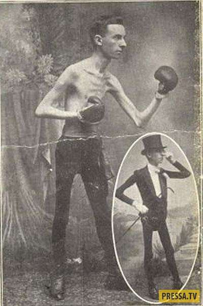 Самые знаменитые артисты цирка уродцев (40 фото)