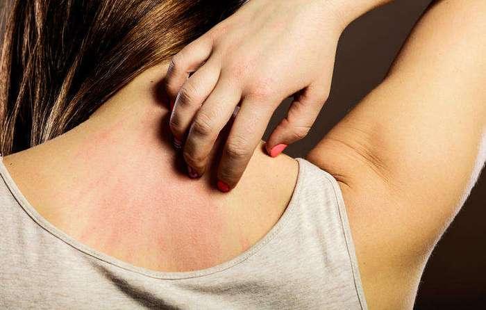 7 невинных симптомов, за которыми кроются серьезные заболевания
