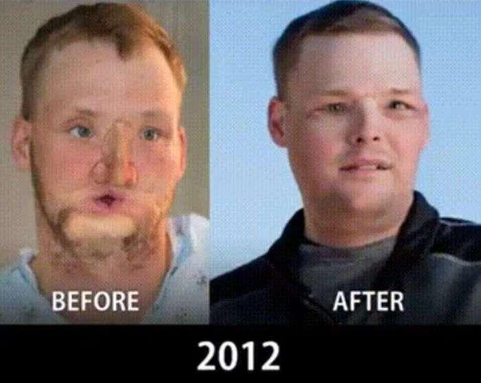 Эволюция в области пластической хирургии и пересадки лица (9 фото)