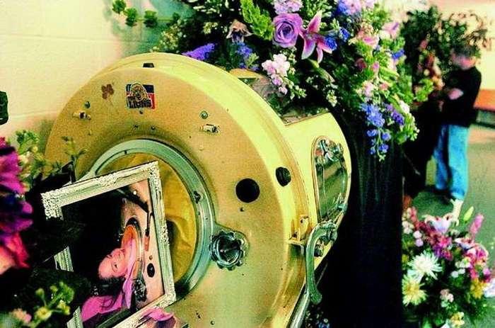 Диана Оделл &8211; женщина, которая почти 60 лет провела с железными легкими