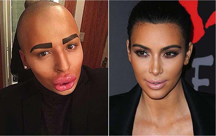 Поклонник Ким Кардашьян сделал множество операций, чтобы превратить себя в ее копию
