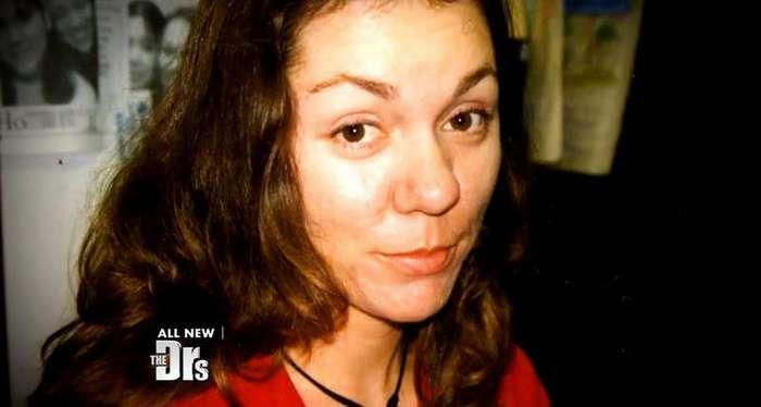 Из-за болезни нос этой женщины вырос до невероятных размеров