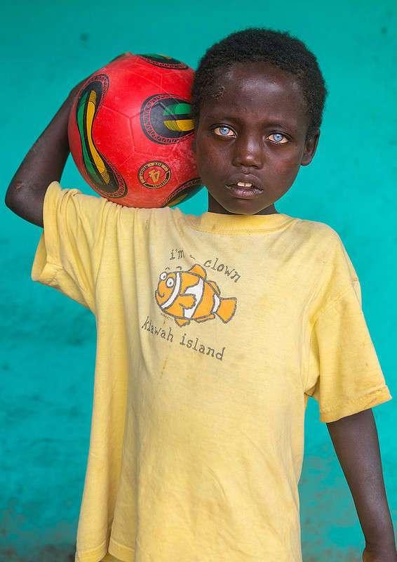 Невероятно красивые глаза африканского мальчика, подаренные ему болезнью