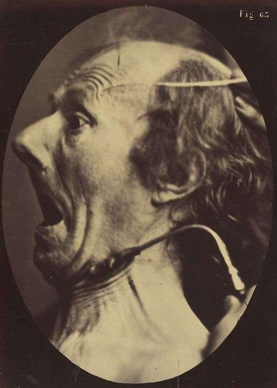 Наука, ты меня пугаешь: как невропатолог Дюшен де Булонь изучал эмоции и мышцы лица в 1862 году