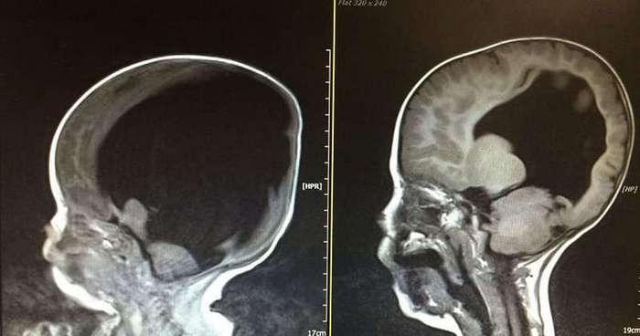 Помните мальчика, который родился почти без головного мозга? Вот как он живёт теперь…