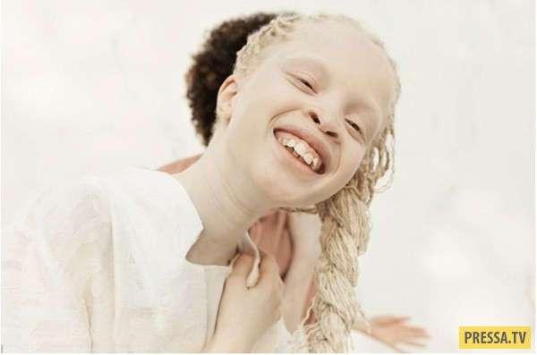 Бразильские близняшки-альбиносы покоряют интернет (12 фото)
