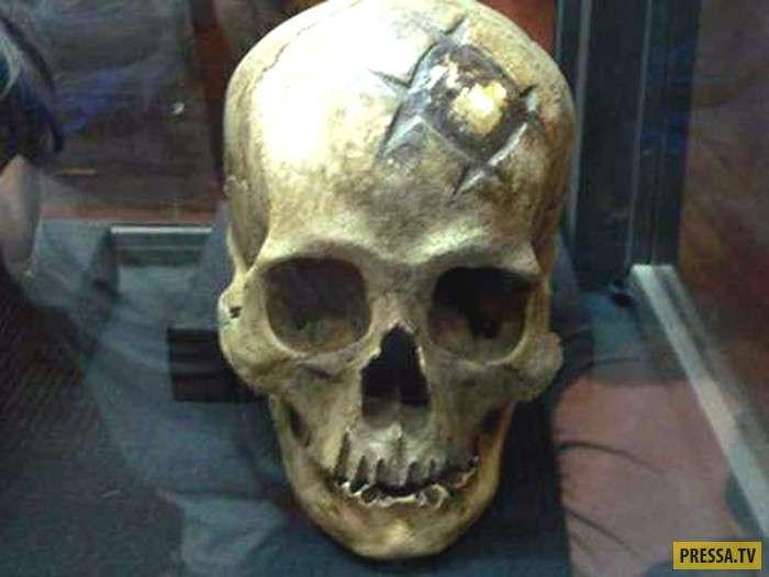 Трепанация черепа у инков остаётся одной из величайших загадок истории медицины (7 фото)