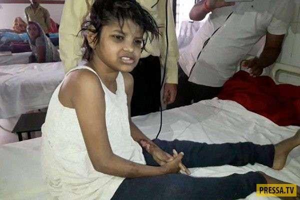 В индийских джунглях обнаружили девочку-маугли, жившую с обезьянами (2 фото )