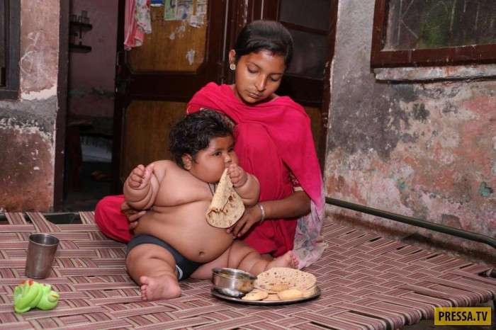 8-месячная Chahat Kumar из Пенджаба весит как 4-летний ребенок (15 фото)