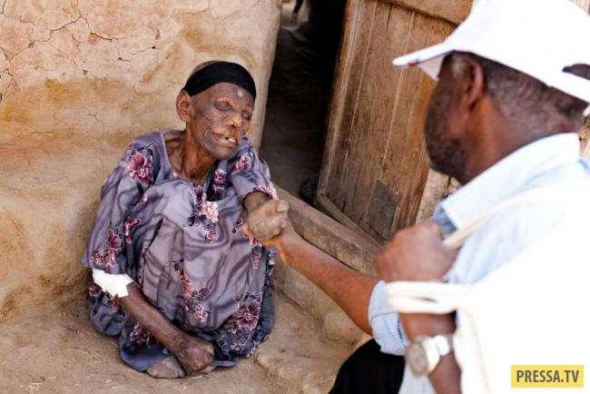 ТОП-15 страшных болезней из тропических стран (15 фото)