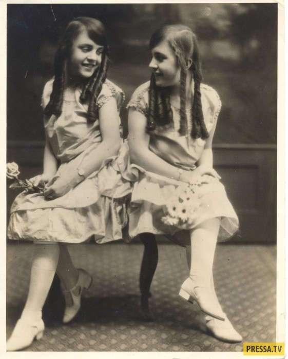 Сиамские близнецы Хилтон - звёзды водевиля начала XX века (8 фото)