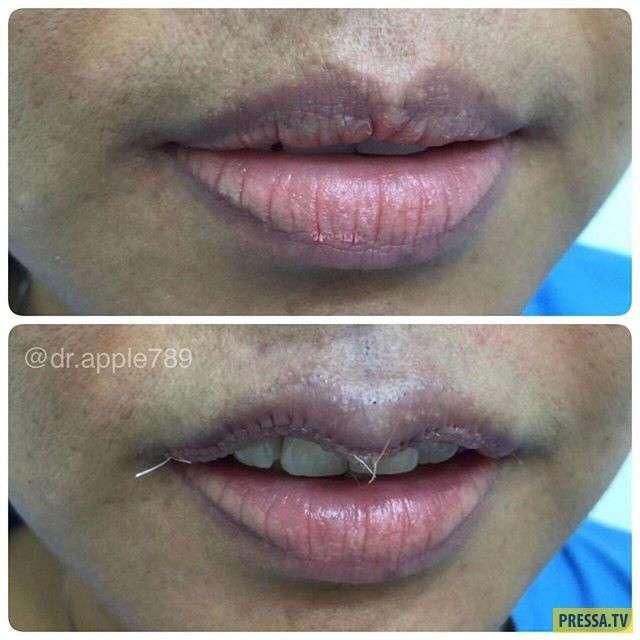 Уменьшение губ - новый тренд гламурных красоток (8 фото)