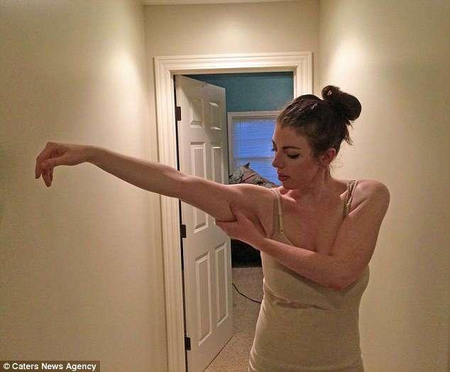 В школе над ней издевались из-за лишнего веса, и тогда отец подарил ей... пластическую операцию
