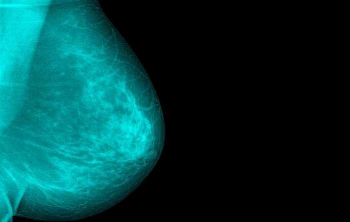 4 симптома рака груди, которые не имеют ничего общего с уплотнениями