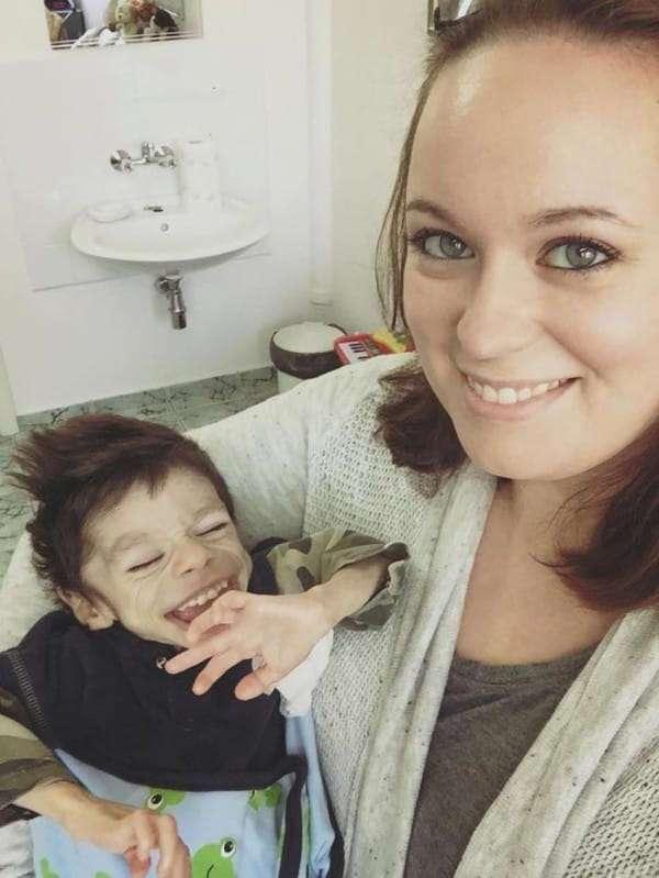Она спасла голодного сироту от смерти. Спустя год малыша просто не узнать!