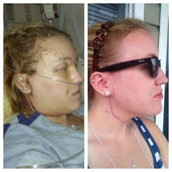 Маньяк нанес ей 32 ножевых ранения. Спустя 3 года её спаситель сделал это...