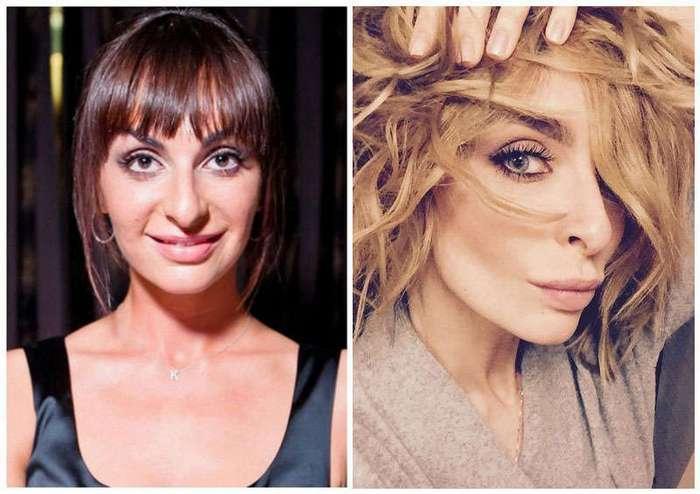 10 красавиц российского шоубизнеса, которые изменились до неузнаваемости