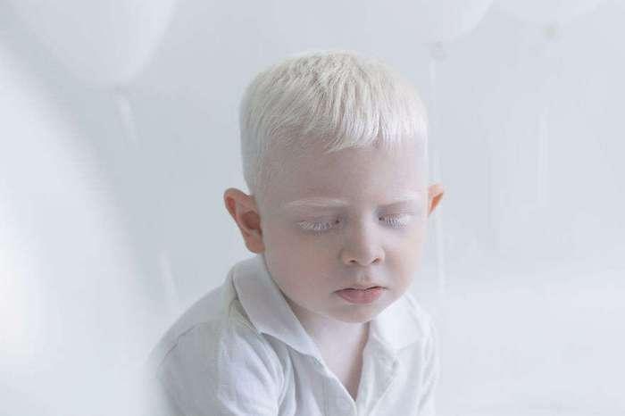 Люди-альбиносы, которые похожи на ангелов