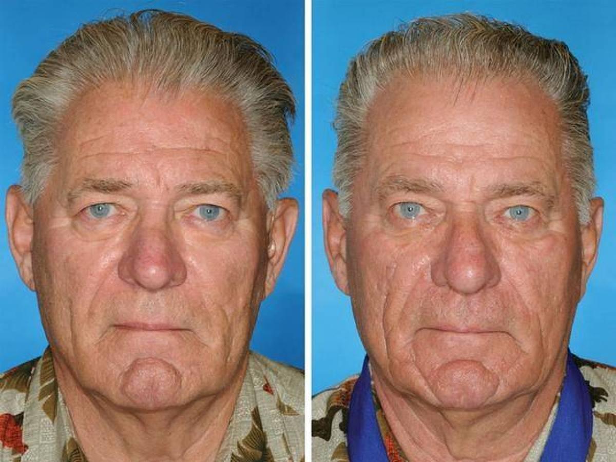 Одни из этих близнецов курят, другие – нет. Эти снимки заставят вас бросить вредную привычку!