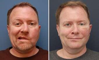 15 случаев, когда пластические хирурги смогли сделать невероятное