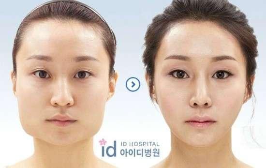 20 сумасшедших фотографий корейской пластики: до и после
