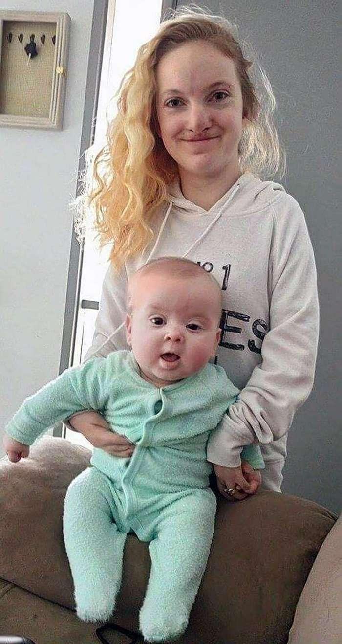 Эта девушка родилась практически без мышц. Но она не просто выжила, но и стала матерью!