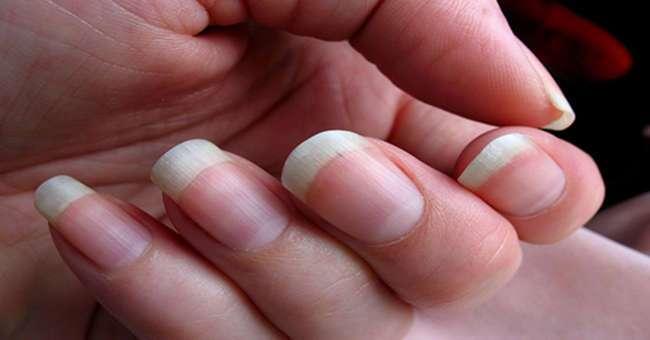 Почему ногти на руках растут быстрее, чем на ногах?