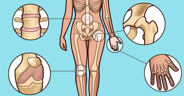 Вы подозреваете, что у вас артрит? Вот 5 ранних симптомов, которые нужно знать