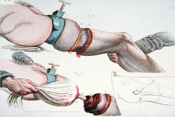 7 хирургических инструментов из прошлого, от которых волосы встают дыбом