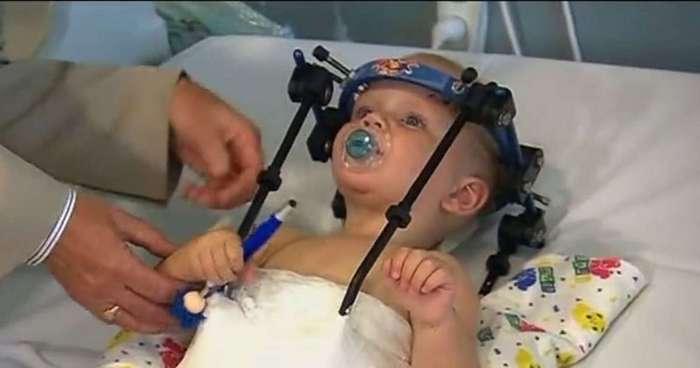 Хирурги пришили голову малышу после аварии. Это настоящее чудо!