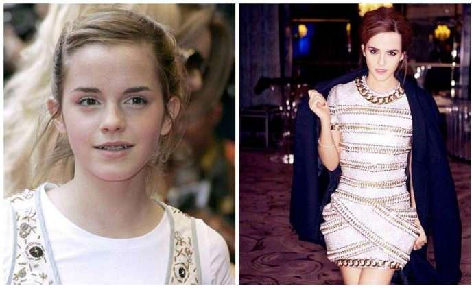 Из простушки в королеву: 11 знаменитых женщин, преобразившихся до неузнаваемости