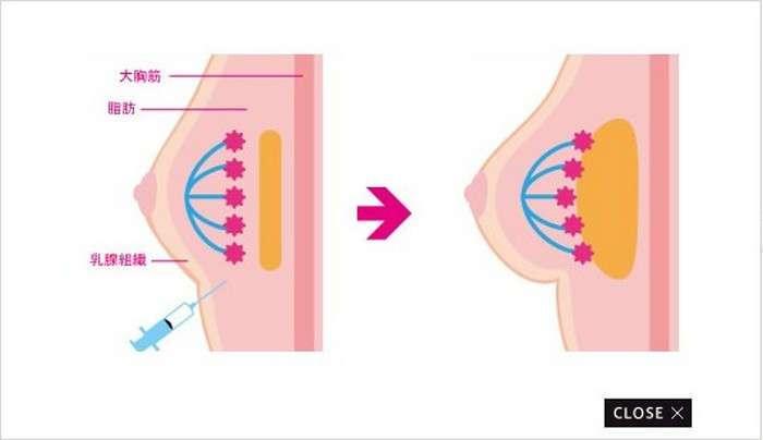 -Золушкин бюст-: в Японии предлагают дёшево увеличить грудь на 24 часа