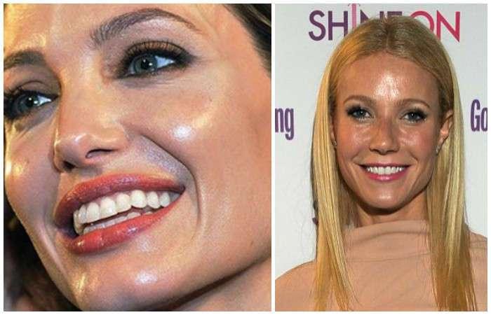 Результат на лицо: 10 правил ухода за жирной кожей, которые быстро порадуют отражением в зеркале