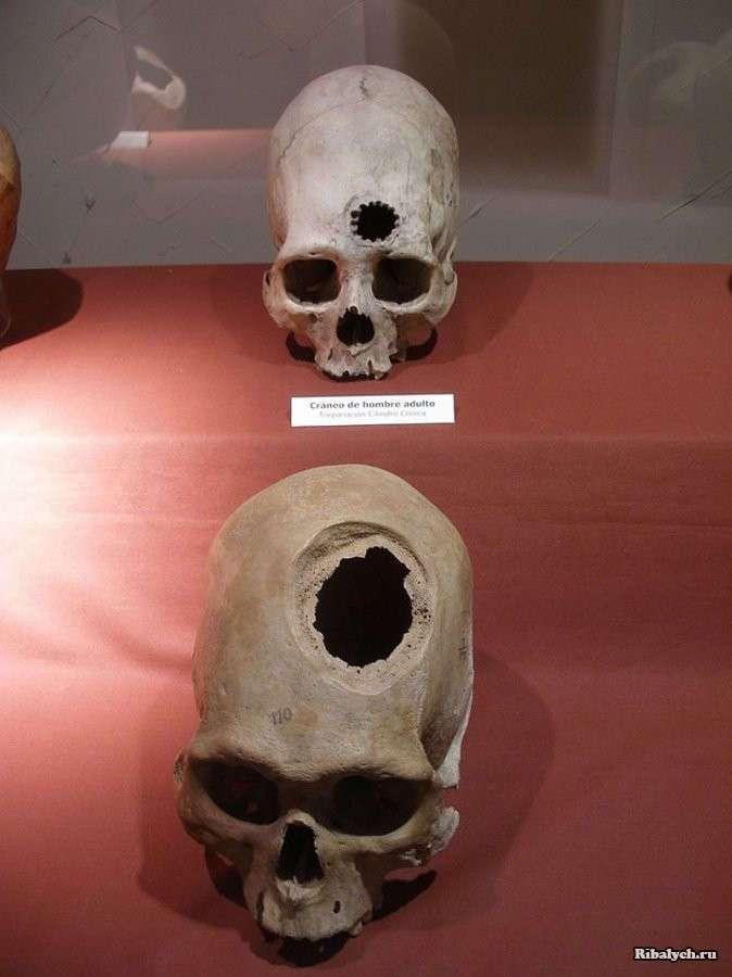 Трепанация черепа самостоятельно: Барт Хьюз, человек который просверлил себе череп (17 фото)